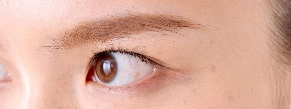 瞼や目の周りの痙攣
